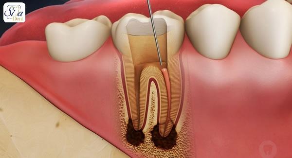 درمان درد عصب کشی دندان, روش های خانگی تسکین درد عصب کشی