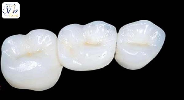 منظور از روکش های زیرکونیا دندان چیست؟