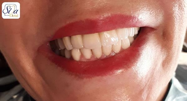 نحوه ساخت روکش دندان زیرکونیا