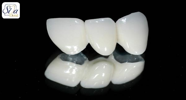 مقایسه روکش دندان زیرکونیا با سایر روکش های دندانی