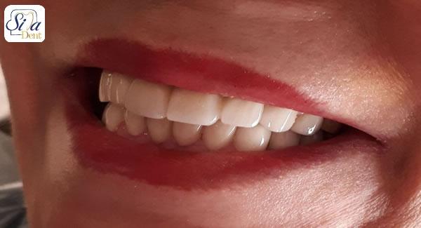 روکش زیرکونیا دندان چه مزایایی دارد؟
