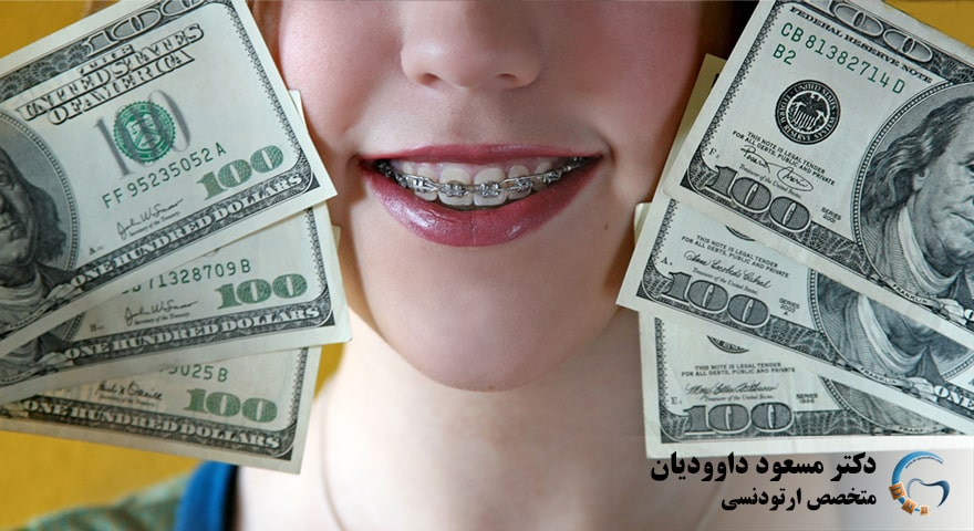 هزینه های ارتودنسی بیشتر به چی بستگی داری میشه کاری کرد کمتر بشه؟