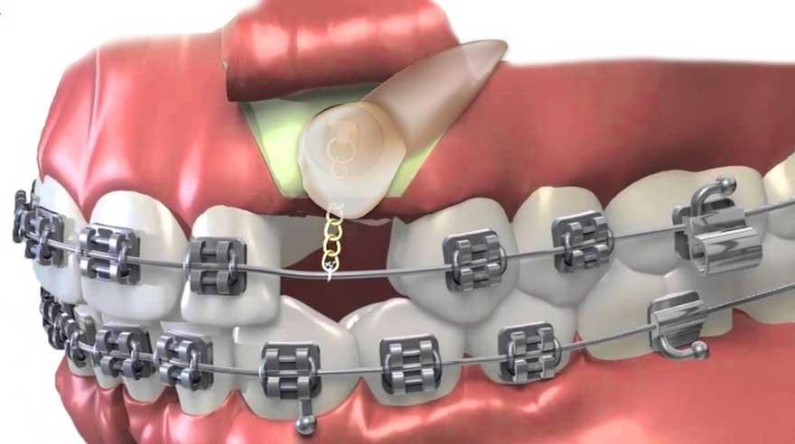 ارتودنسی تک دندان