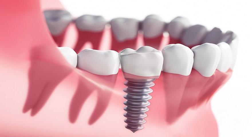قیمت ایمپلنت دندان در سال 99