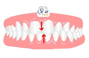 نامتقارن بودن دندانها