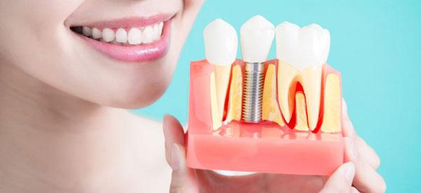 طول عمر ایمپلنت دندان یا کاشت دندان