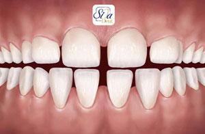 فضای اضافی بین دندانها