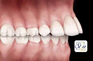 الاسنان المتقدمة