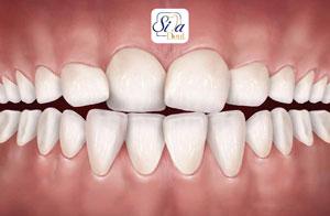 المساحة القلیلة بین الاسنان