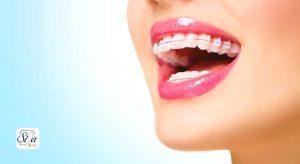 ارتودنسی سرامیکی یا همرنگ دندان