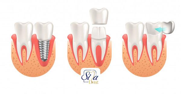 آیا ایمپلنت دندان عوارض دارد؟