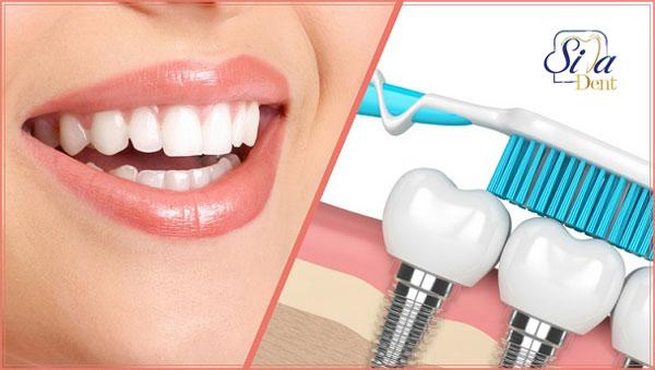 علائم عفونت ایمپلنت دندان
