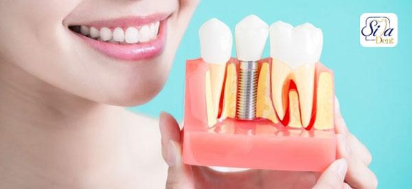 تا چند سال بعد از کشیدن دندان میتوان ایمپلنت کرد؟