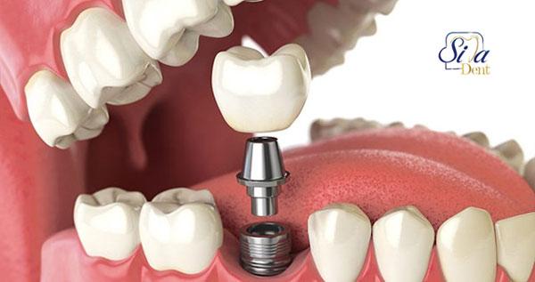 آیا همه دندان ها را میتوان ایمپلنت کرد؟