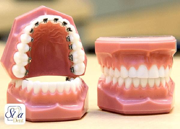 ارتودنسی از پشت دندان