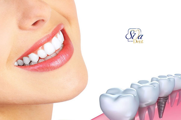 ایمپلت دندان