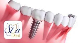 مدت زمان مورد نیاز برای ایمپلنت پس از کشیدن دندان