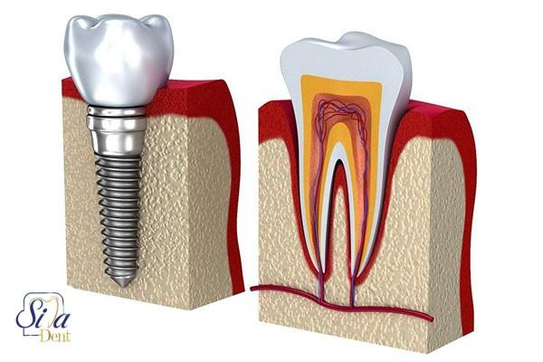 ایمپلنت دندان چقدر طول میکشد؟