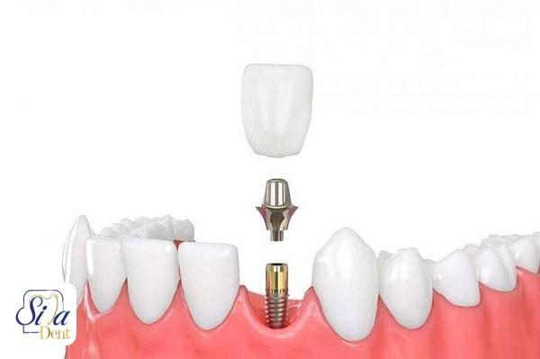 ایمپلنت دندان نیش