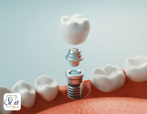 کاشت دندان به چند روش ممکن است؟