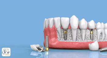 درمان ایمپلنت راهی برای دندان از دست رفته