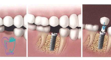 Implant definition