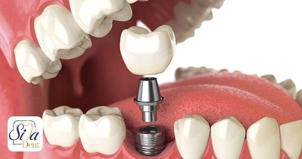 ایمپلنت دندان برای چه افرادی ممنوع است؟
