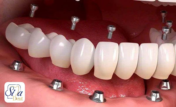 ایمپلنت دندان با بیهوشی