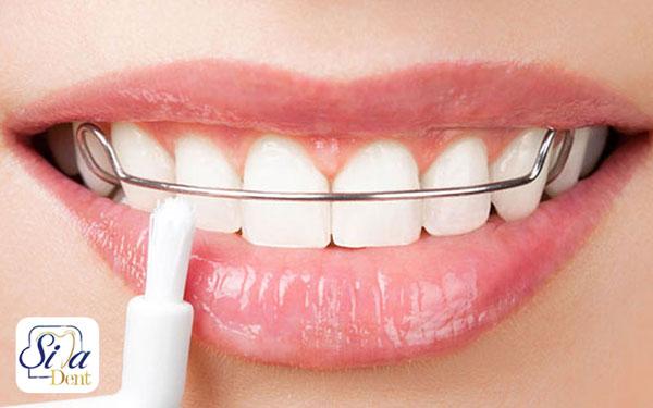 انواع روش های درمان ارتودنسی دندان