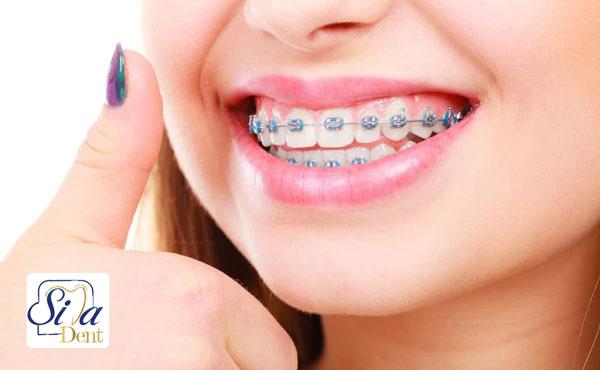 مزایای ارتودنسی دندان