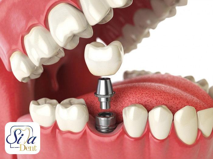 شرایط ایمپلنت دندان
