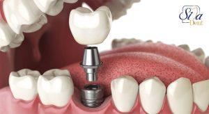کاشت و ایمپلنت دندان طبیعی با پایه ایمپلنت