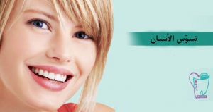 منع تسوّس الأسنان وعلاج السن المتسوّس