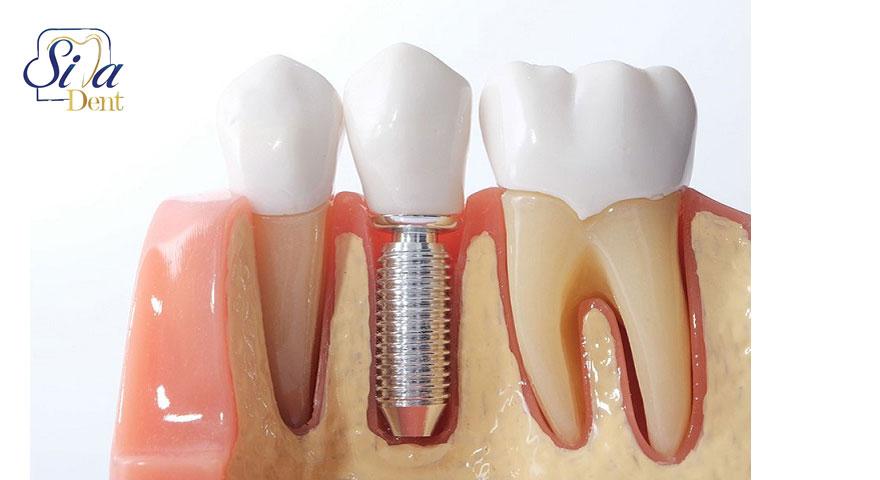 آیا دندان ایمپلنت عفونت میکند؟