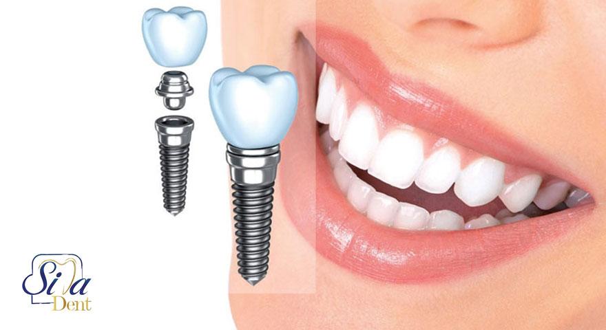 آیا کاشت دندان با ایمپلنت فرق دارد؟