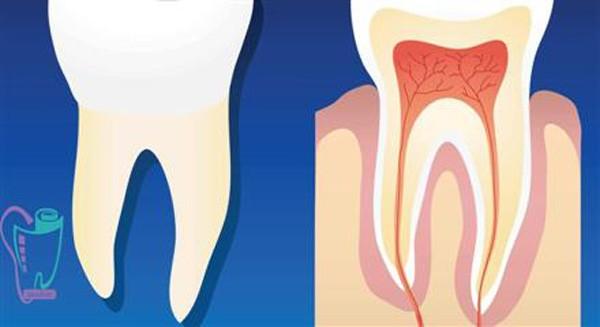 علاج جذر الأسنان
