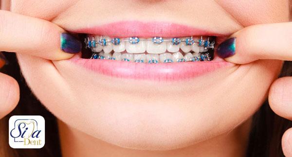 سلام وقتتون بخیر، با وجود دو عد ایمپلنت امکان داره برای نا مرتبی دندان ها ارتودنسی انجام بدم؟