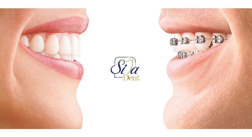چه دندان هایی نیاز به ارتودنسی دارند؟