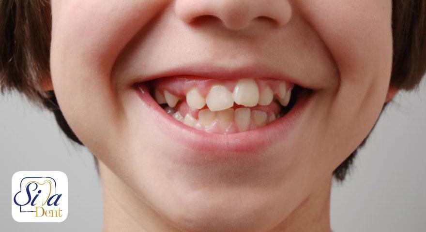 ارتودنسی دندان کج
