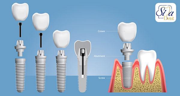 ایمپلنت-جلوگیری از تحلیل لثه بعد از کشیدن دندان