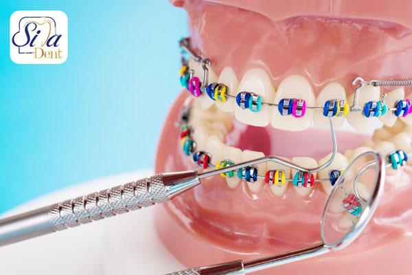 ارتودنسی-جلوگیری از تحلیل لثه بعد از کشیدن دندان