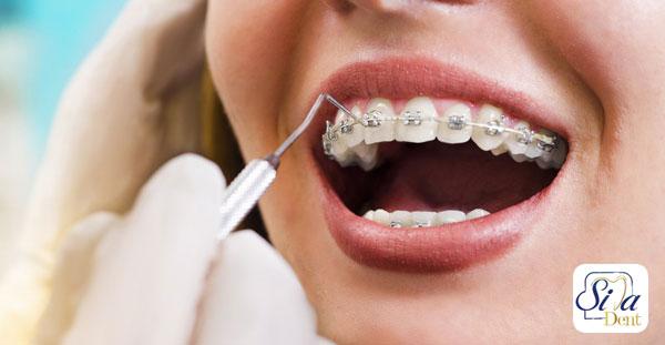 جرم گیری دندان بعد از ارتودنسی