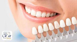 بهترین متخصص لمینت دندان در تهران