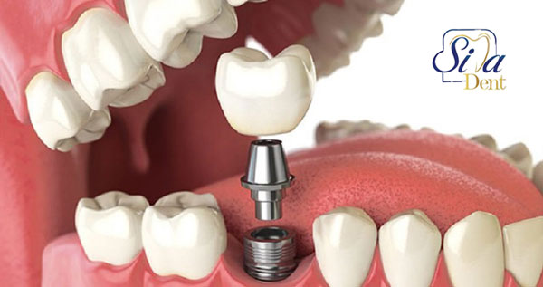 Duration of dental implant procedure