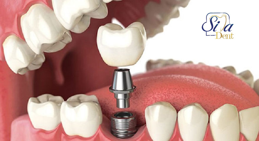 Duration of dental implant procedure