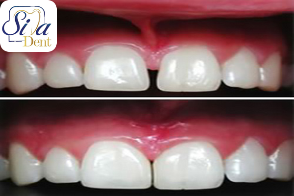 The best way to close the gap between the teeth
