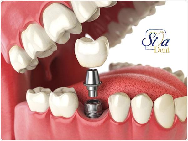 هزینه کاشت دندان