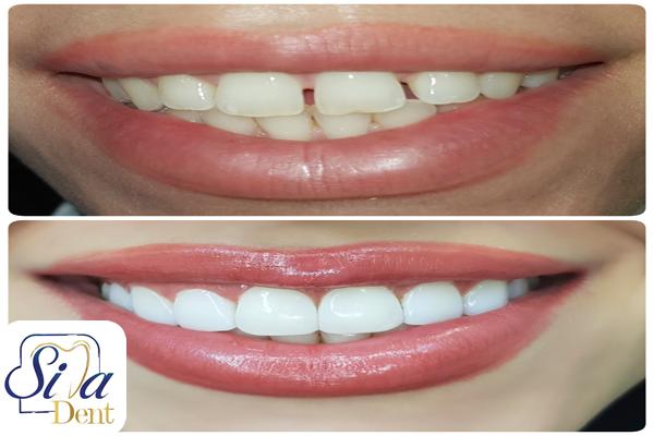 کامپوزیت دندانها