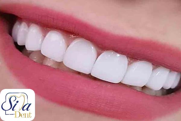 کامپوریت دندانها