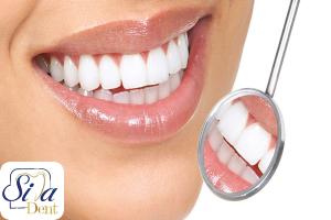 کامپوریت دندان